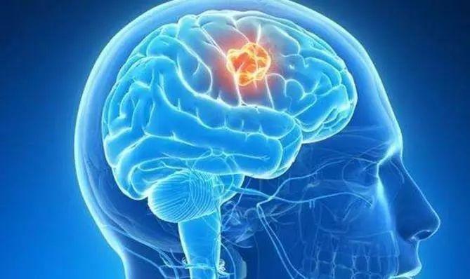悪性脳腫瘍、リンパ癌の原因は腎臓にある