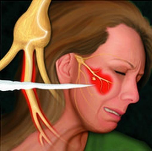11年も治らない三叉神経痛は、西洋医学の治療を受けたからです