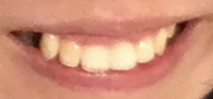 抜歯後の画像