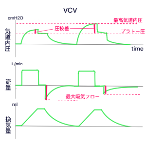 人工呼吸器管理⑷グラフィック波形を見てみよう! - かんご ...