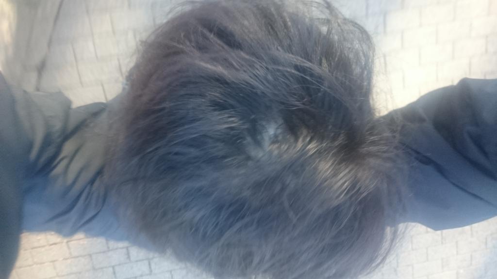 ハゲ隠し髪型セット