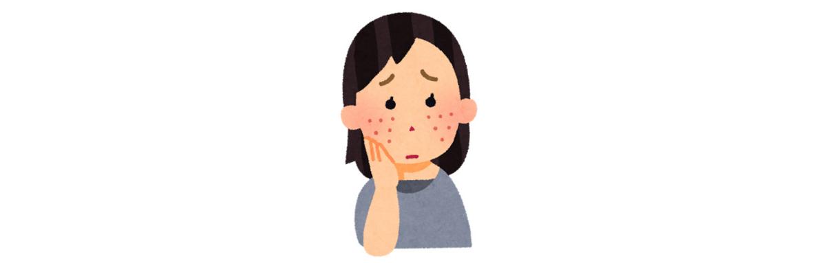 脂漏性皮膚炎 顔