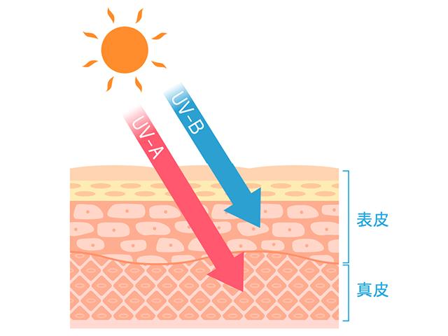 紫外線による光老化