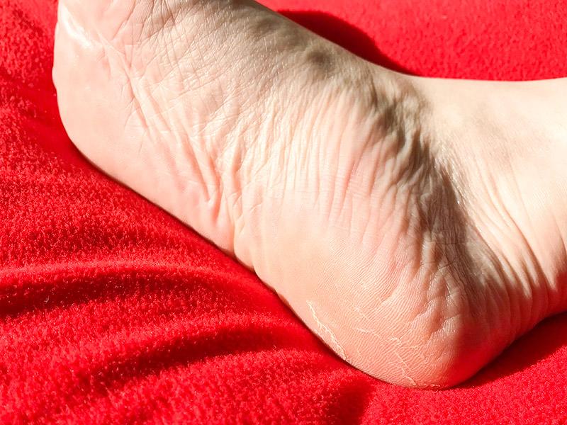 削らない角質ケアBaby Foot(ベビーフット)