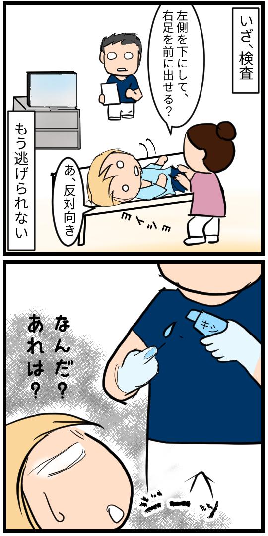 局所麻酔塗る