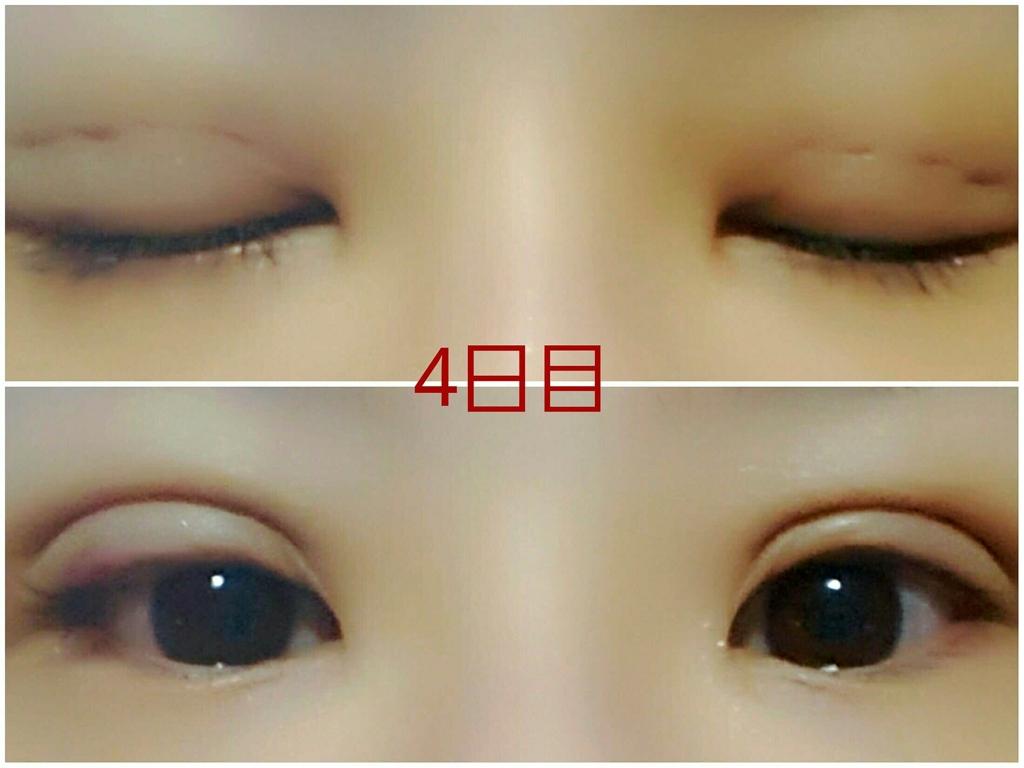 f:id:mai-nishigaki-0114:20170413140235j:plain
