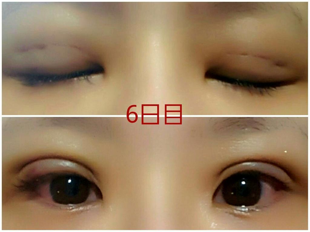 f:id:mai-nishigaki-0114:20170413141056j:plain