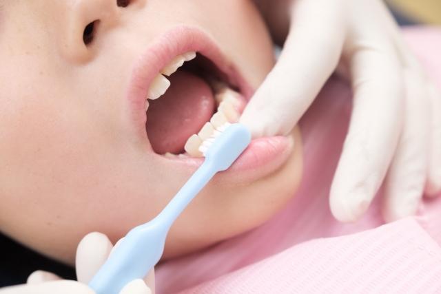 歯並び 矯正