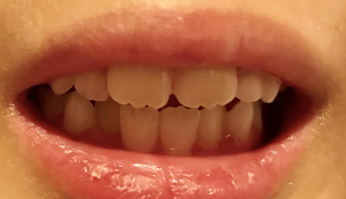 現在の歯並び