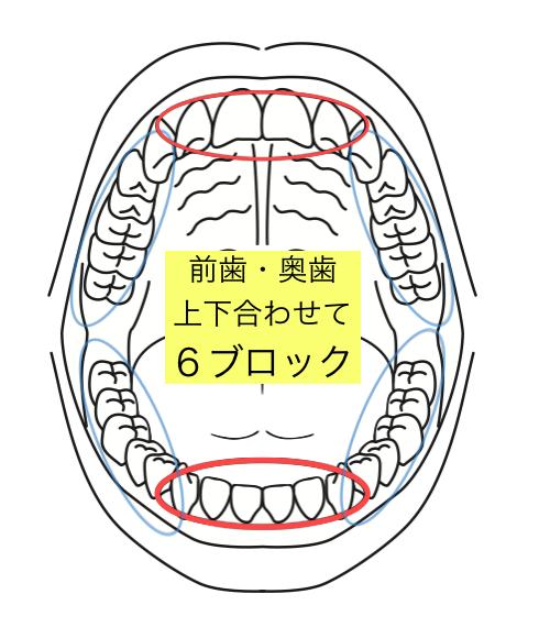 f:id:makino-ortho:20160901101711p:plain