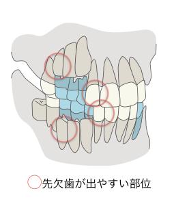 先天性欠如歯・頻出部位