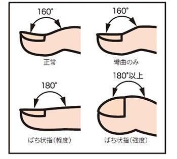 f:id:mako-s-kurowassan0411:20181218012512j:plain