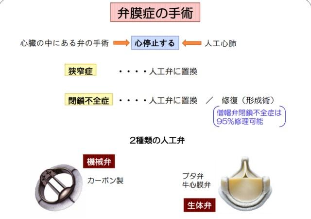 f:id:mako-s-kurowassan0411:20190605111222j:plain