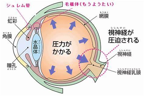 緑内障の眼球