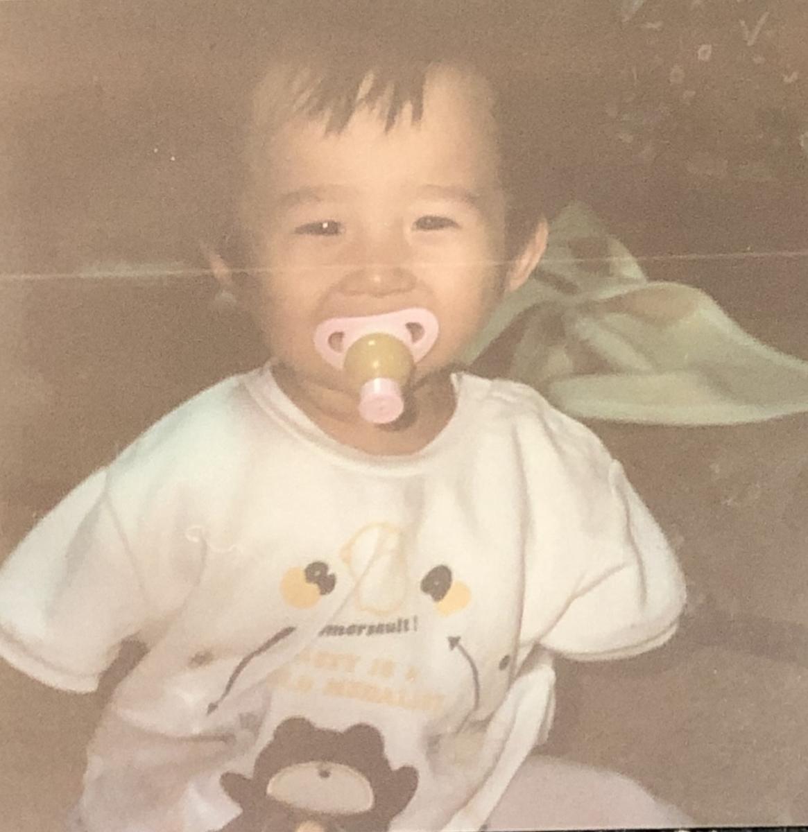 腕のない幼少期の頃の自分の写真