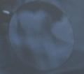 親不知抜歯前の奥歯のレントゲン写真