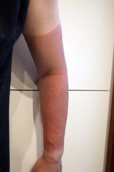 左腕の日焼け