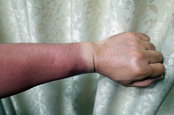 手首の日焼け