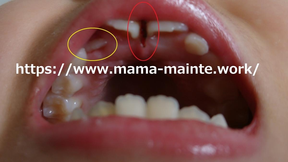 f:id:mama_mainte:20190326110138j:plain:w300