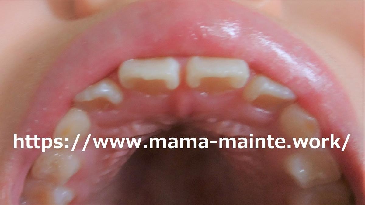 f:id:mama_mainte:20190327113351j:plain:w200