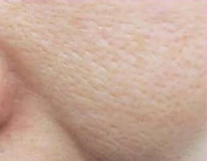 保湿 30代 スキンケア 方法 老化 朝 美肌