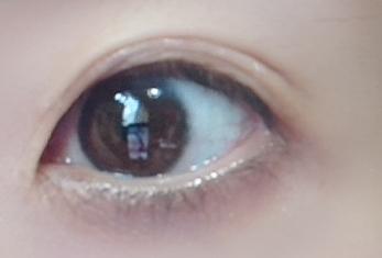 eyelidessence.open