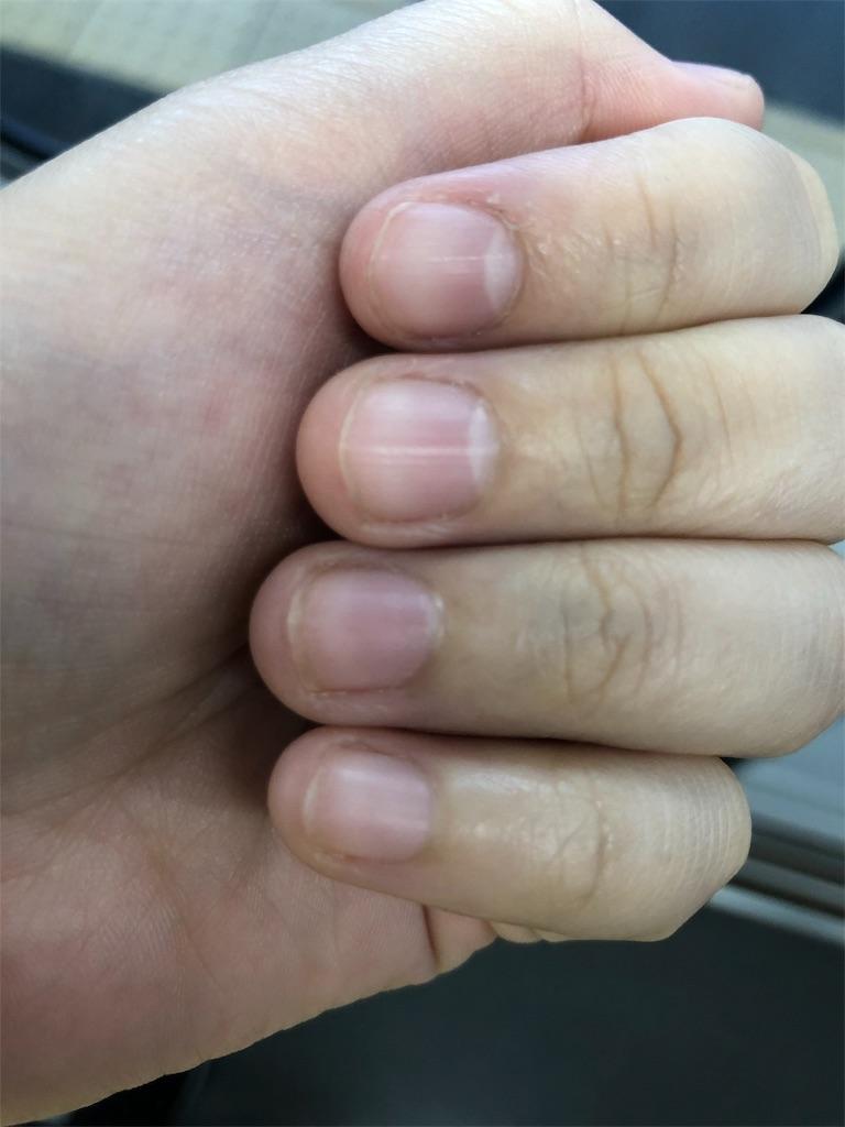 傷 爪 噛み 自
