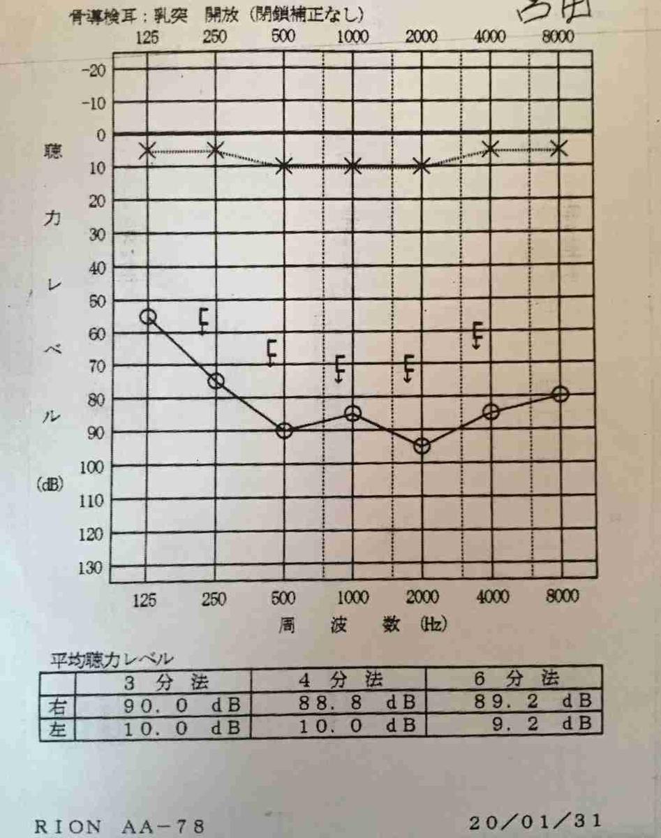 入院初日の聴力検査の結果