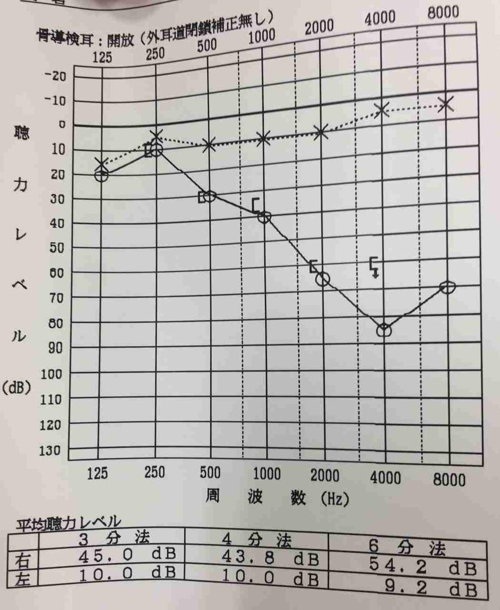 突発性難聴66日後の聴力検査の結果