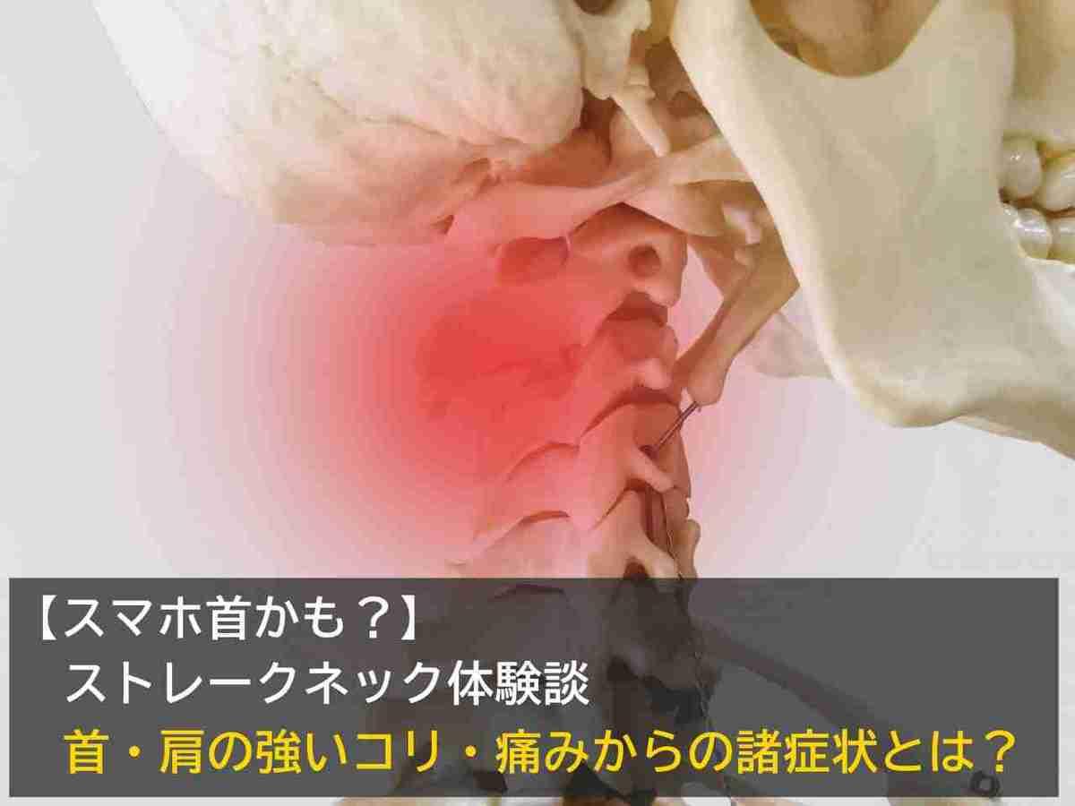 【スマホ首かも?】ストレークネック体験談。首・肩の強いコリ・痛みからの諸症状とは?