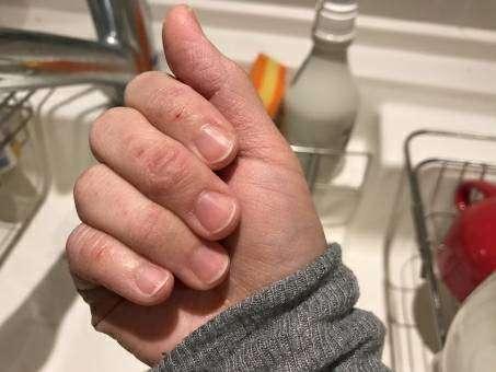 水仕事で荒れた手