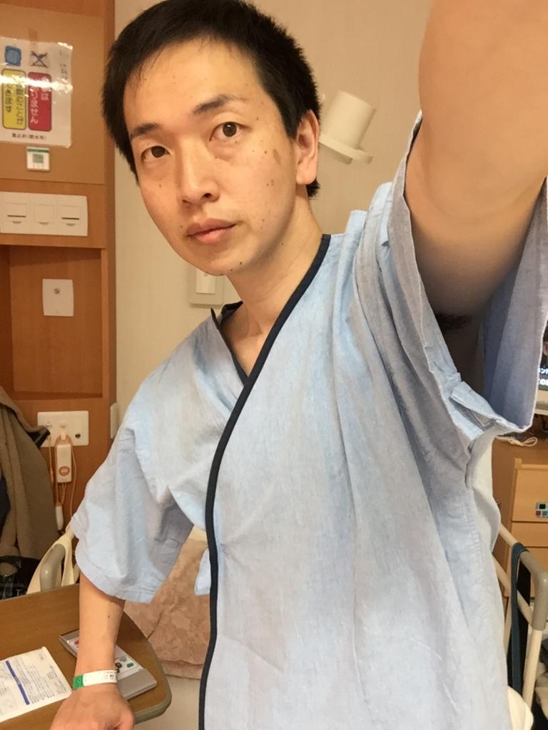 f:id:masayukigt:20170402221925j:plain