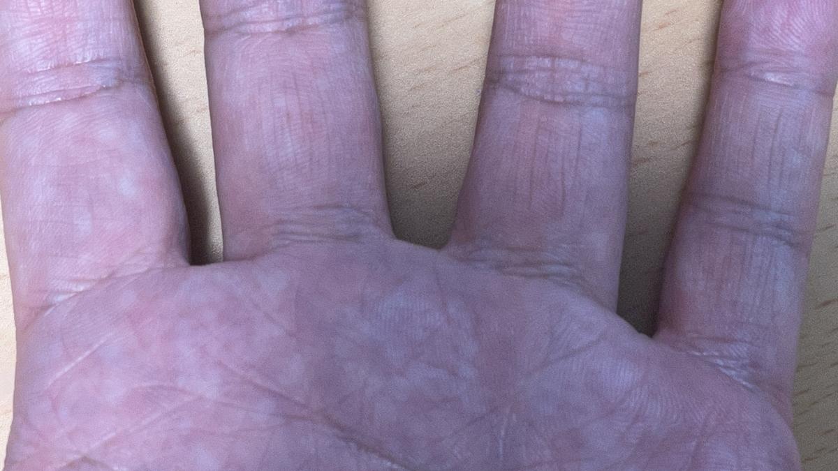 木酢液で治療したイボ3