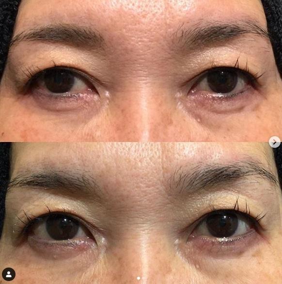 f:id:matome-biyou-clinic:20190530103600j:plain