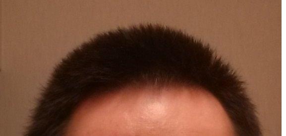 坊主 2か月後 髪の長さの画像