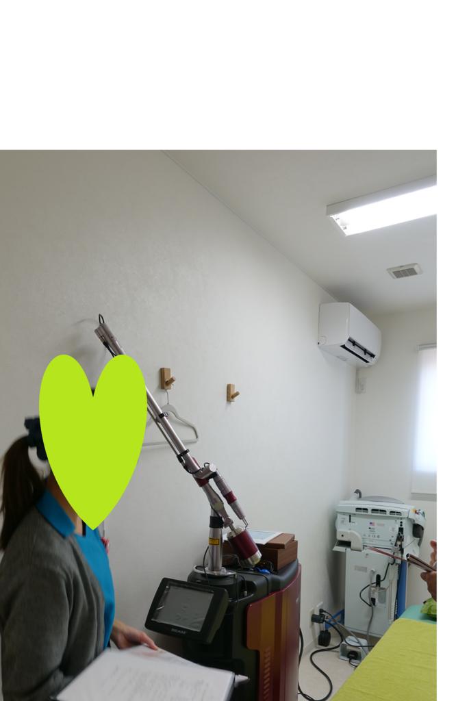 f:id:matsuo-eyelid:20180126134140p:plain