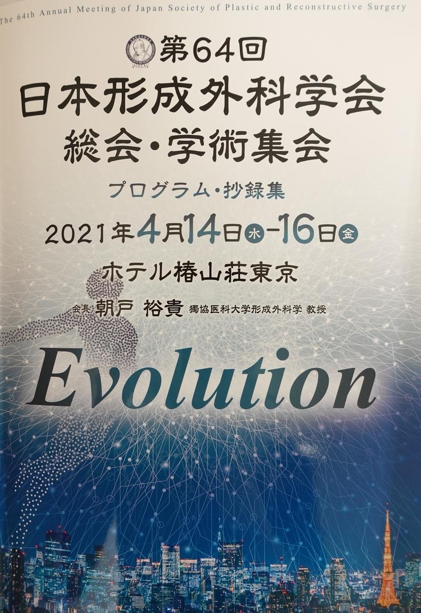 f:id:matsuo-eyelid:20210414142749j:plain