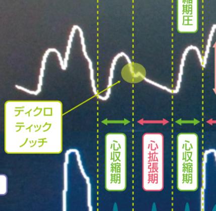 f:id:matsutakeshi4444:20170303191429p:plain