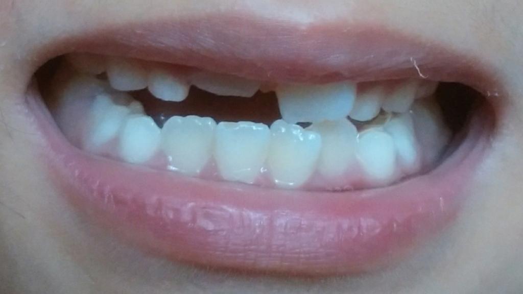 歯列矯正型どり時の歯並び