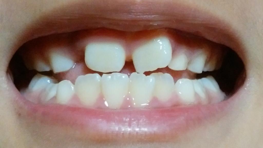 矯正開始前の歯並び