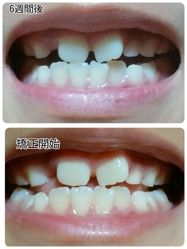 歯並びの比較
