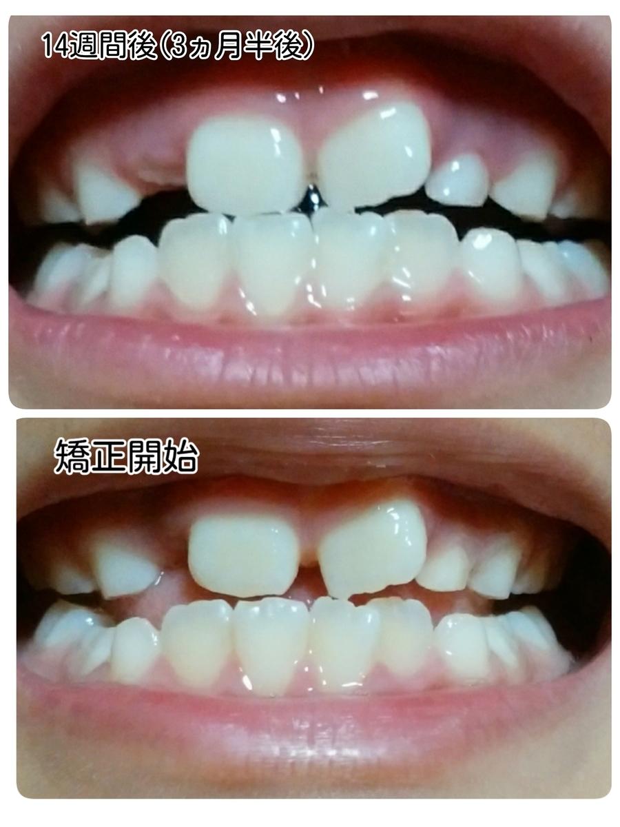 矯正開始時と経過観察2回目の歯並びの比較