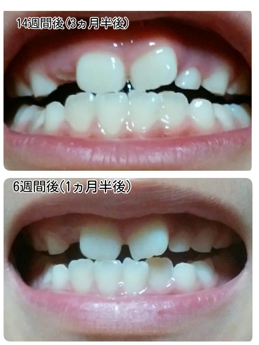 経過1回目と経過観察2回目の歯並びの比較