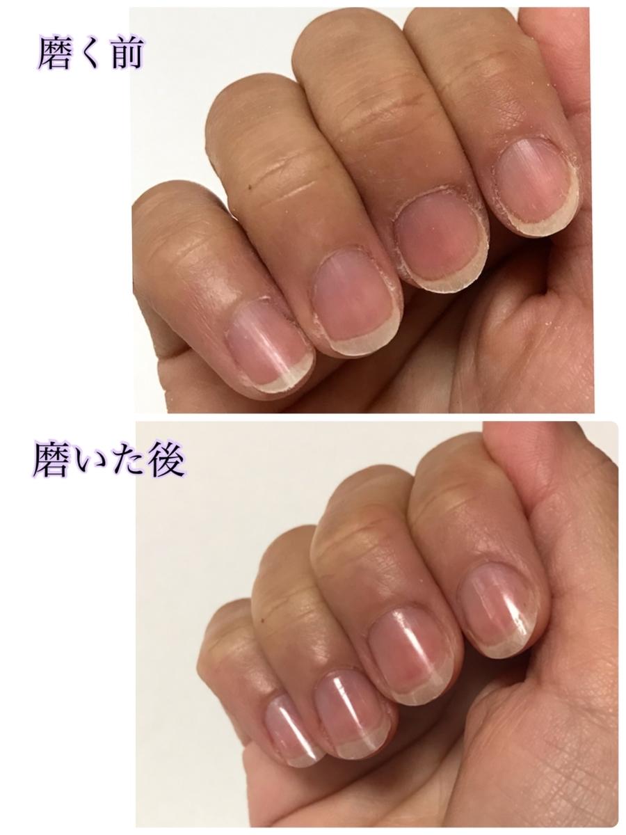磨く前と磨いた後の爪