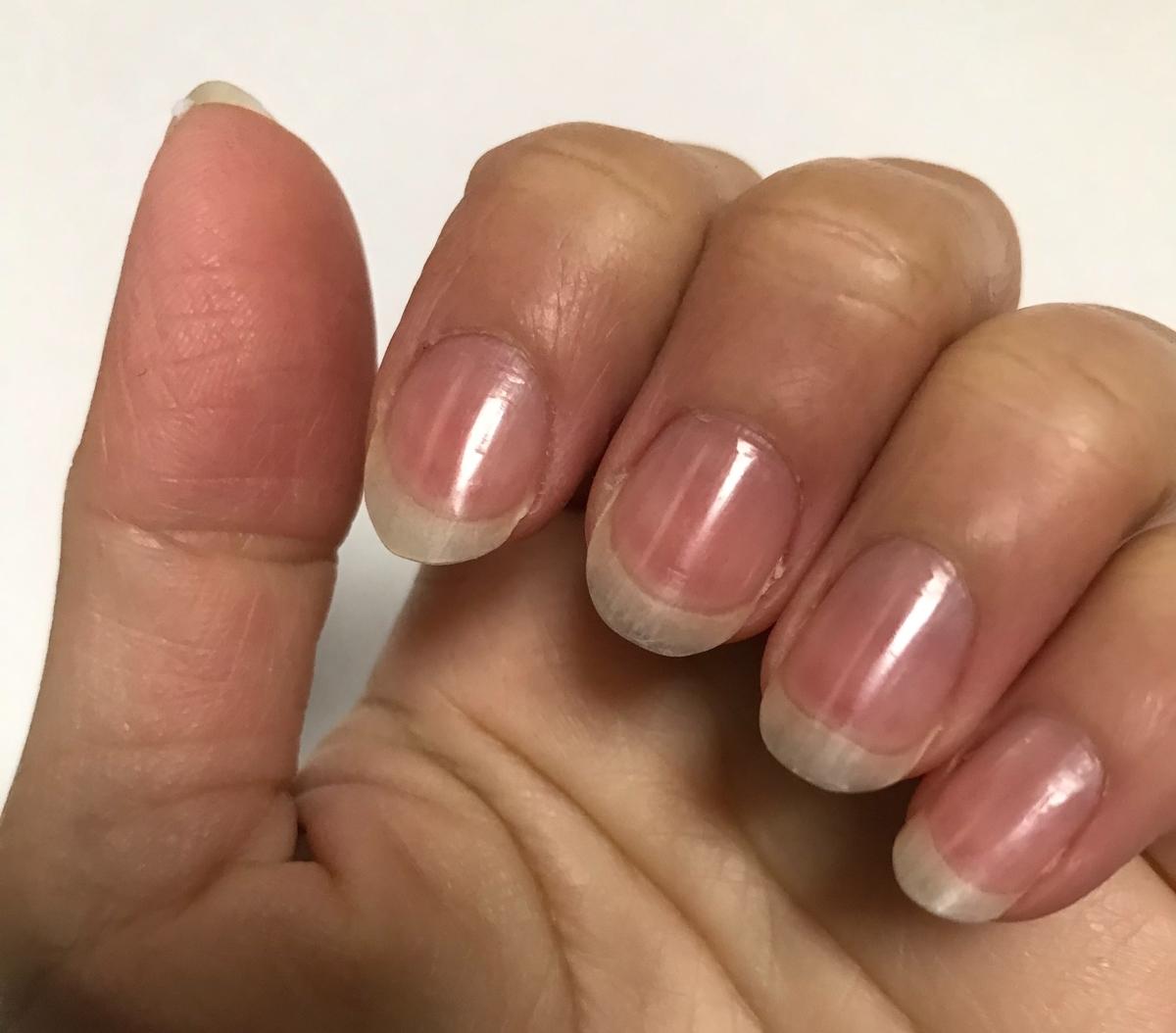 磨いて3日後の爪