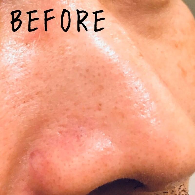 ダイソー小鼻専用洗顔ブラシ