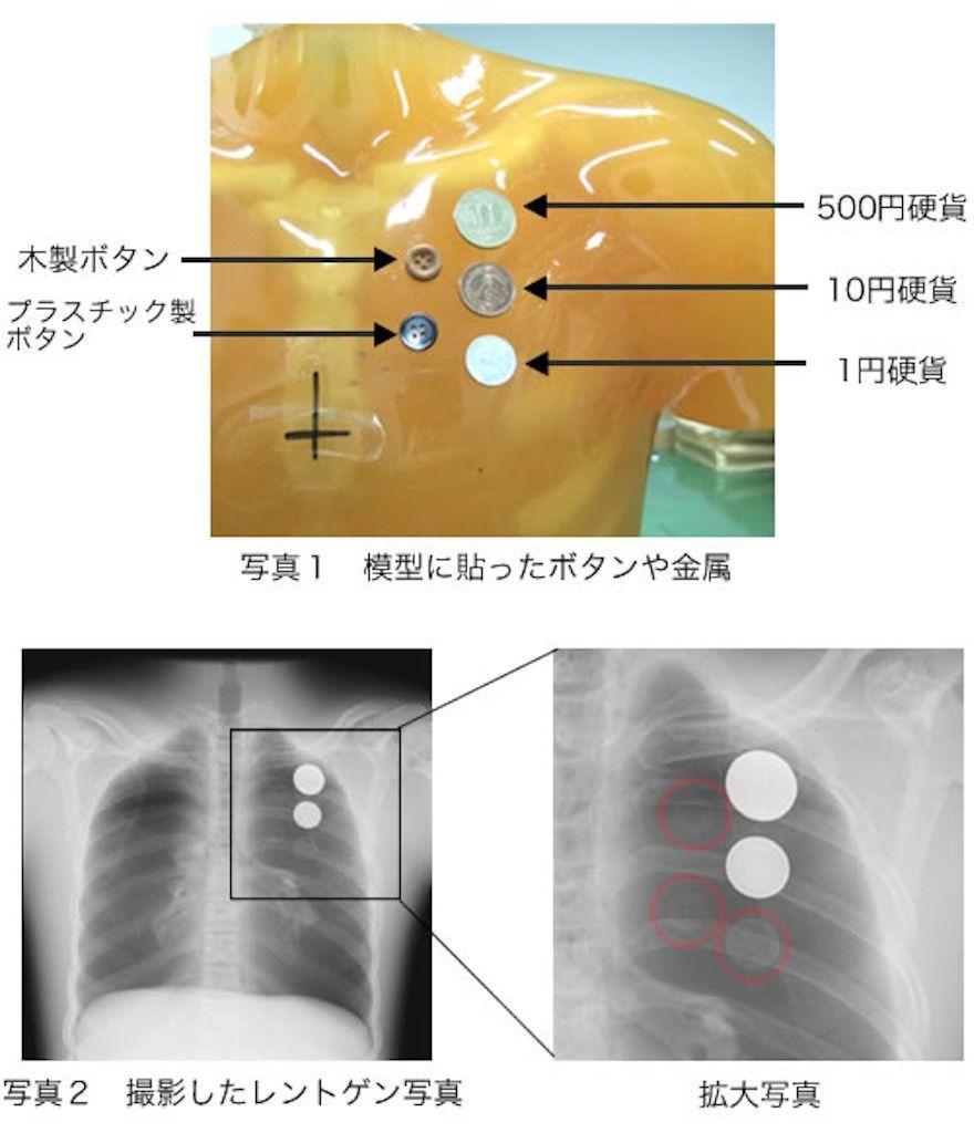 材質別のレントゲン撮影検証の画像