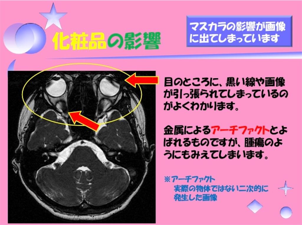 f:id:medicalbs:20190126074230j:image