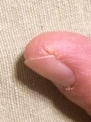 あかぎれた人差し指の画像