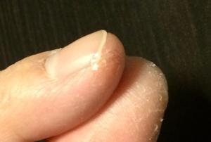 液体絆創膏を親指右側の患部に塗る